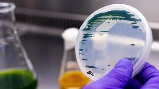 Unilever se alía para desarrollar la nutrición a base de microalgas